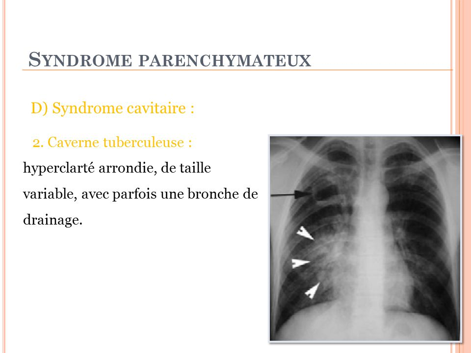 Syndrome parenchymateux