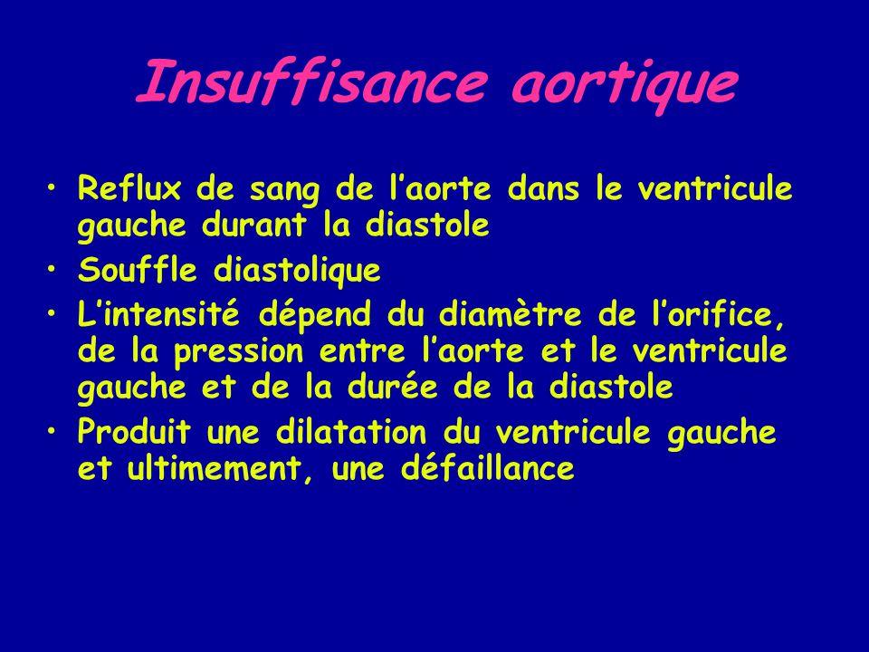 insuffisance aortique grade 2