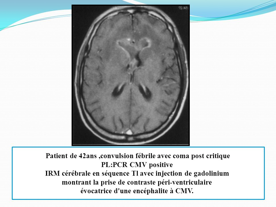 irm cerveau vaisseaux