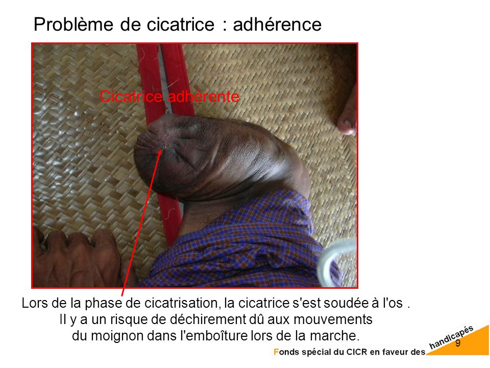 cicatrice invaginee définition
