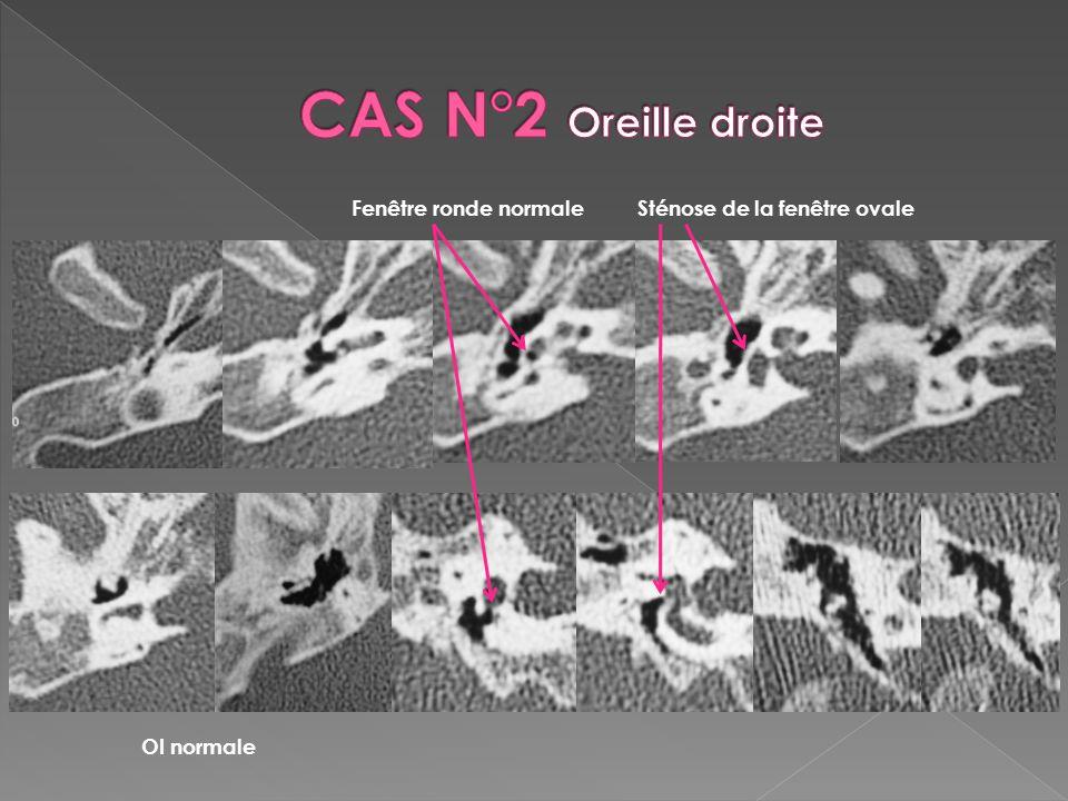 Malformations De Loreille A Propos De 5 Cas Ppt Video Online