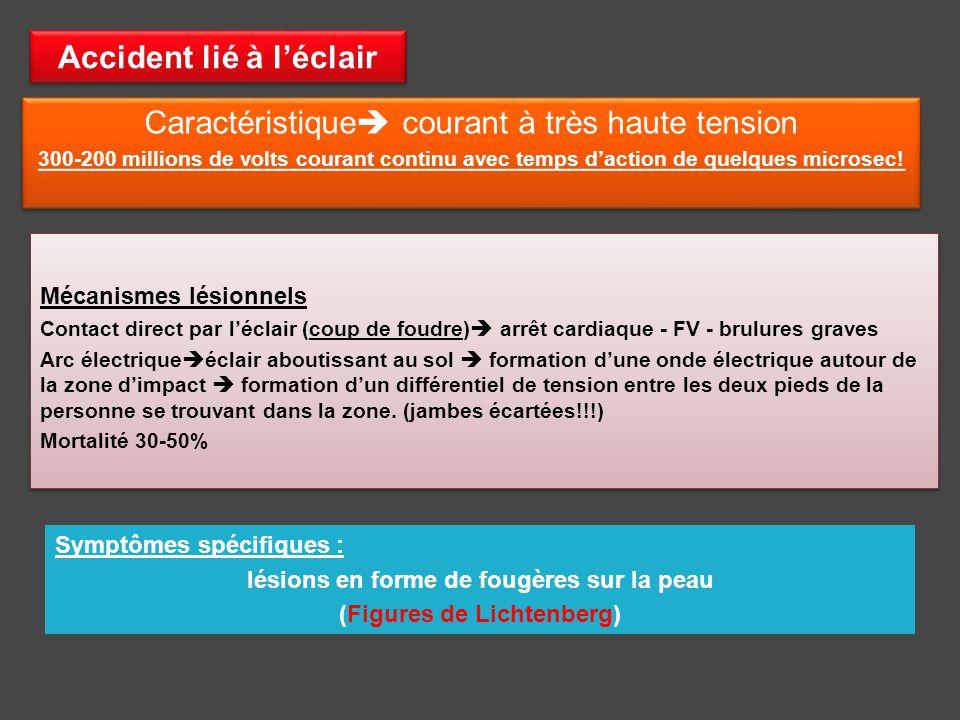 Les accidents d lectrisation ppt video online t l charger - Coup de foudre symptomes ...