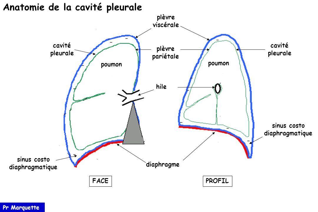 Erfreut Parietale Pleura Anatomie Bilder - Anatomie Ideen - finotti.info