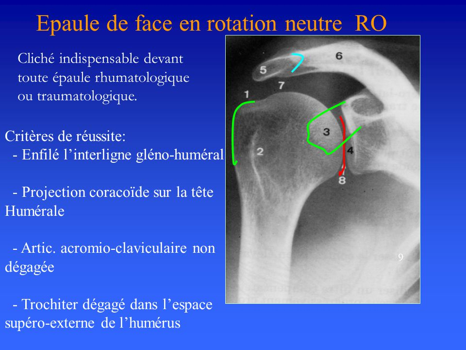 Epaule de face en rotation neutre RO