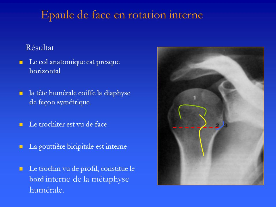 Epaule de face en rotation interne