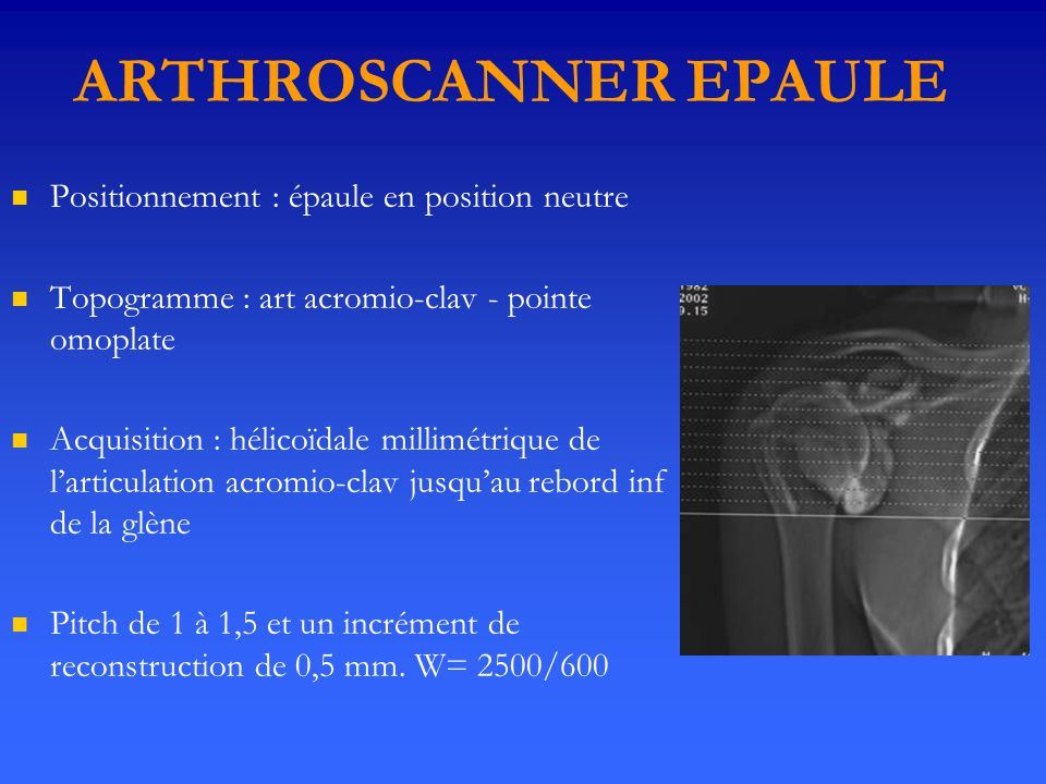ARTHROSCANNER EPAULE Positionnement : épaule en position neutre