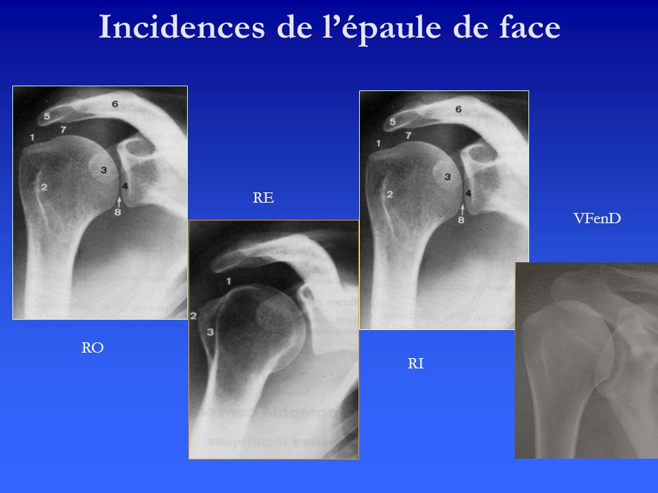 Incidences de l'épaule de face