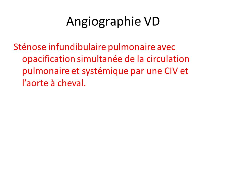 Angiographie VD