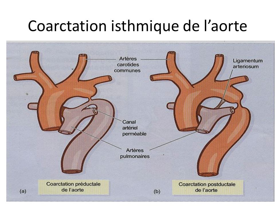 Coarctation isthmique de l'aorte