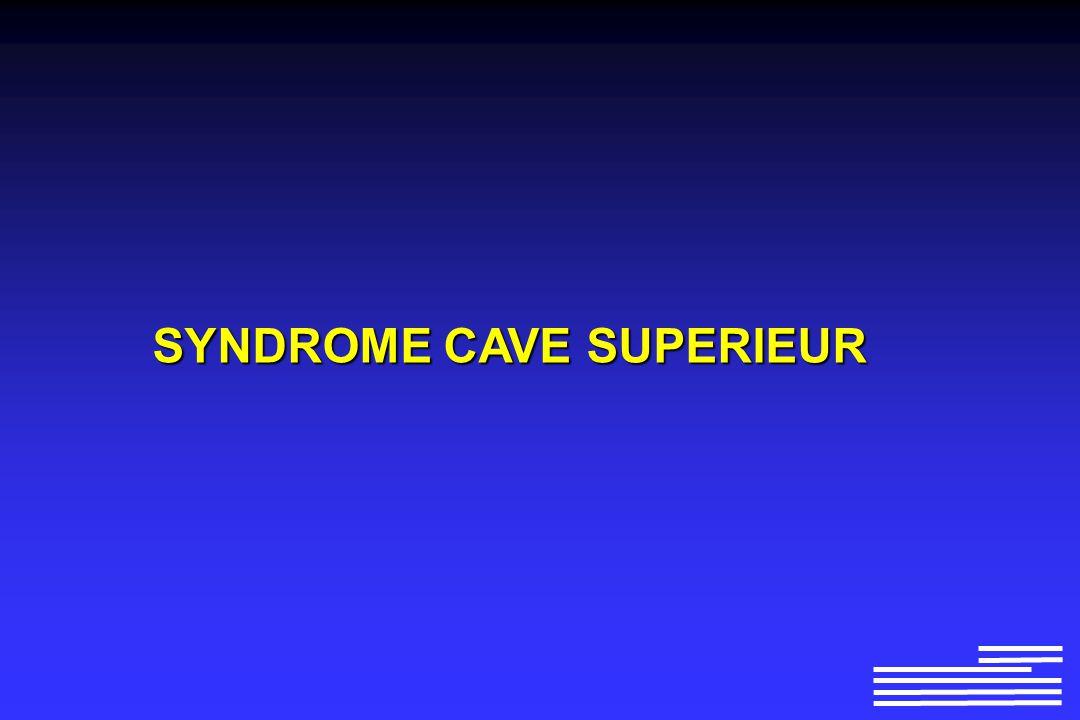 Syndrome Cave Superieur