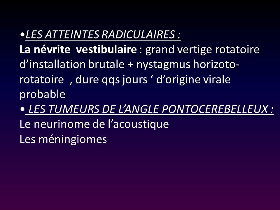 traitement névrite vestibulaire