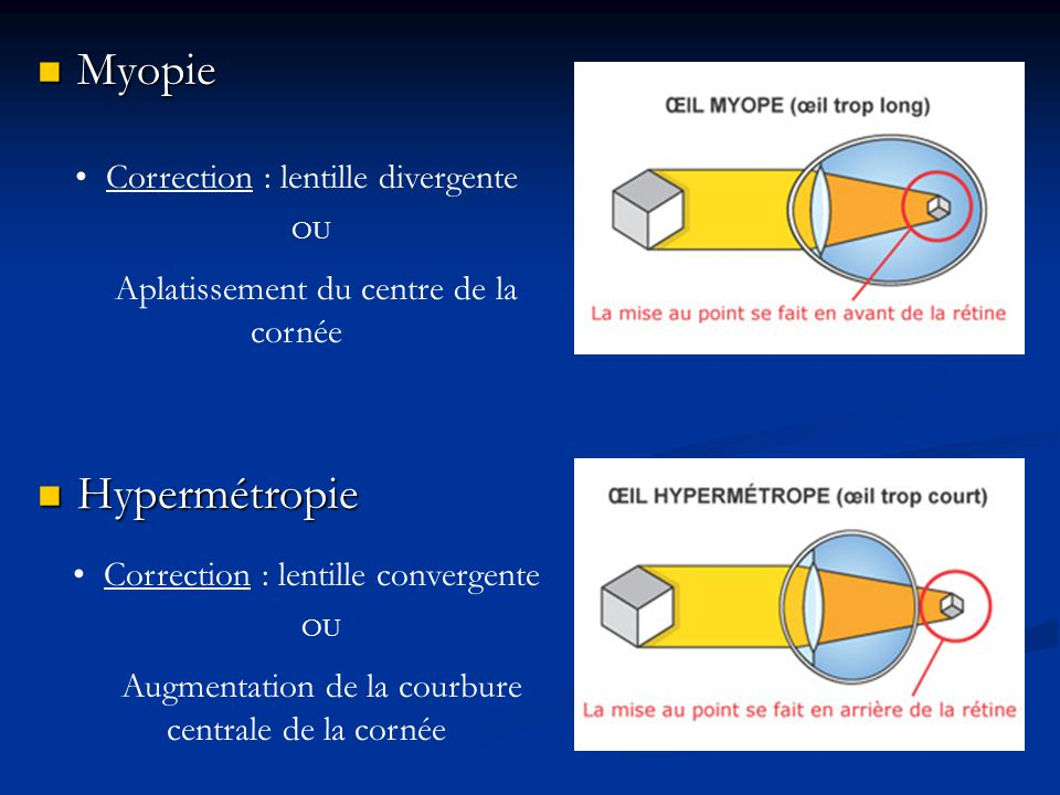 Lentille Myopie Et Presbytie Lasik Tunisie Traitement
