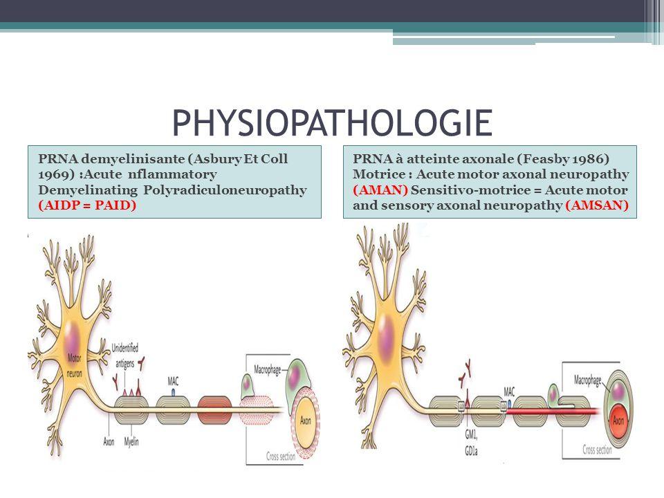 PHYSIOPATHOLOGIE PRNA demyelinisante (Asbury Et Coll 1969) :Acute nflammatory Demyelinating Polyradiculoneuropathy (AIDP