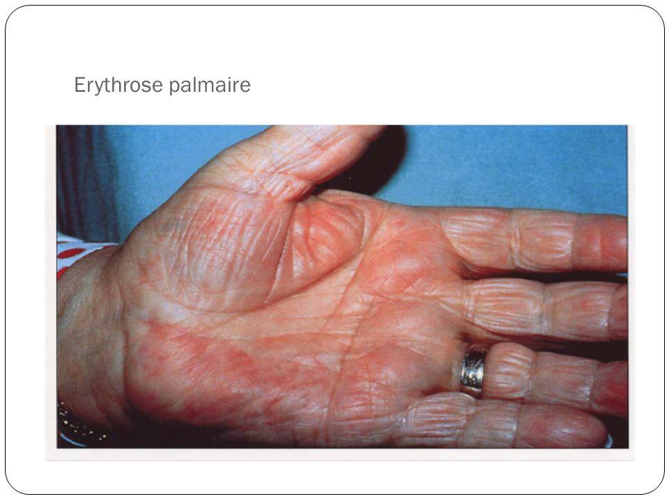 D Erythrose Cirrhose du foie. - pp...