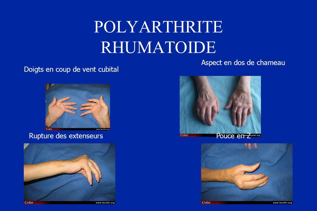 Polyarthrite Rhumatoïde - ppt télécharger