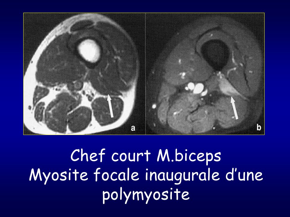 Chef court M.biceps Myosite focale inaugurale d'une polymyosite