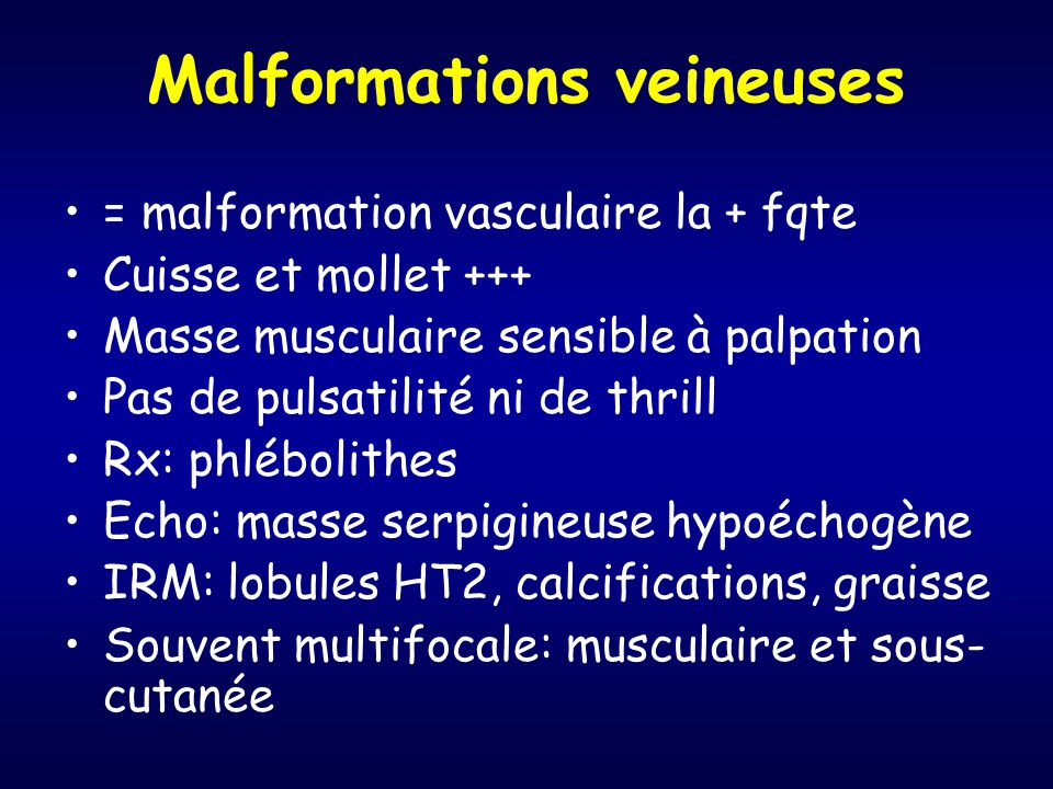 Malformations veineuses