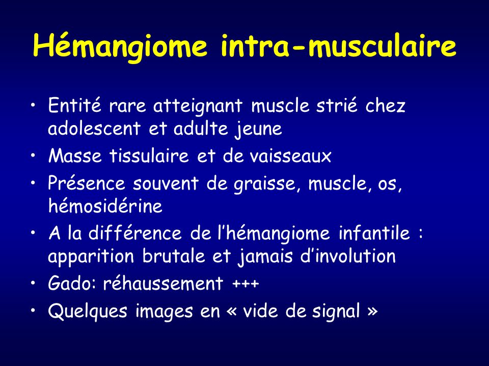 Hémangiome intra-musculaire
