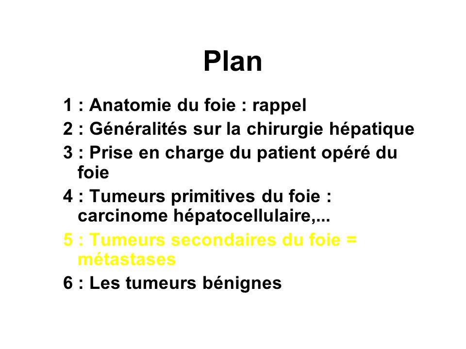 Tumeurs du foie Centre Hépato-Biliaire - ppt video online télécharger
