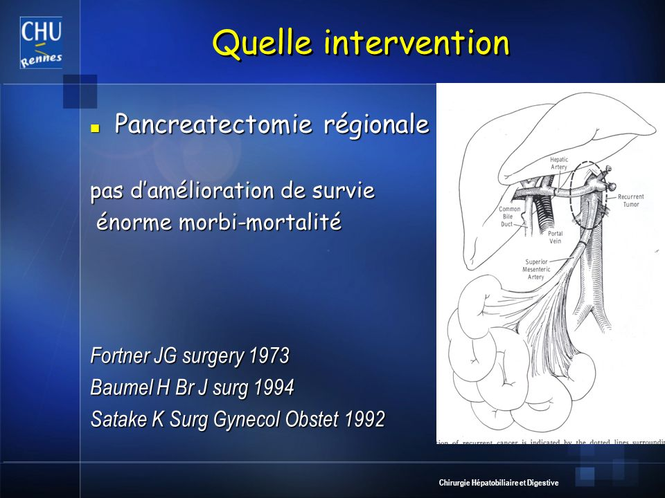 Quelle intervention Pancreatectomie régionale