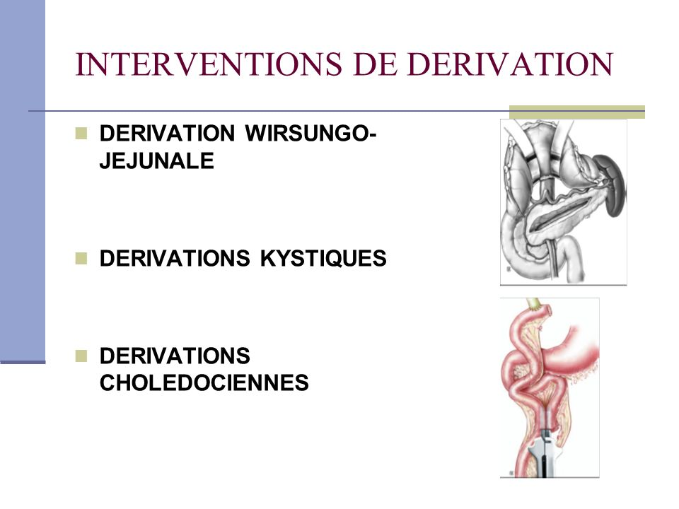 INTERVENTIONS DE DERIVATION