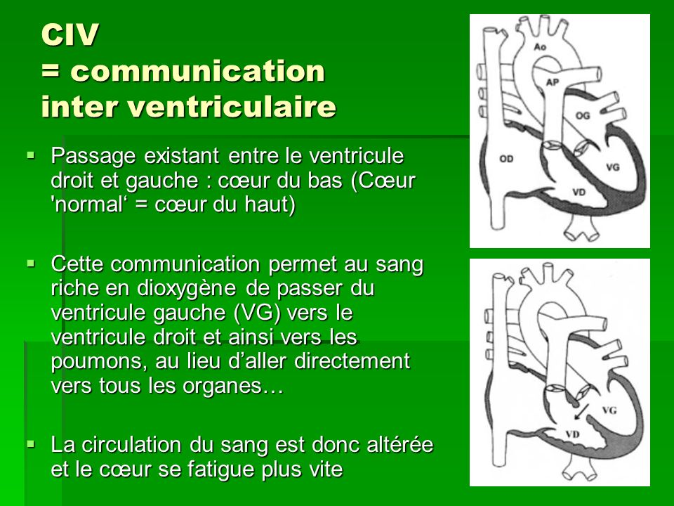 CIV = communication inter ventriculaire
