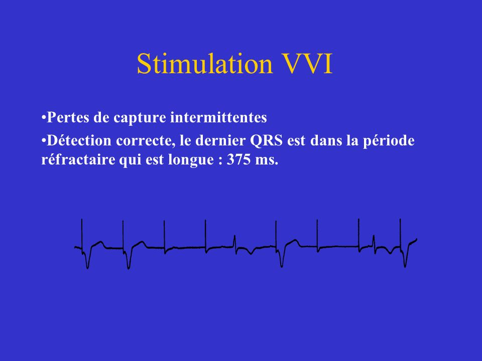 Stimulation VVI Pertes de capture intermittentes