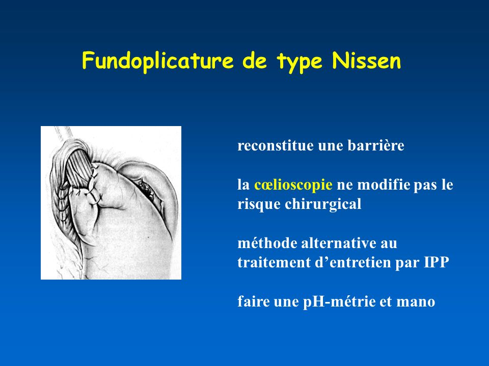 Fundoplicature de type Nissen