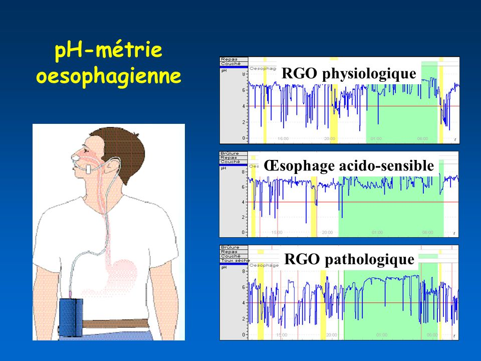 pH-métrie oesophagienne Œsophage acido-sensible