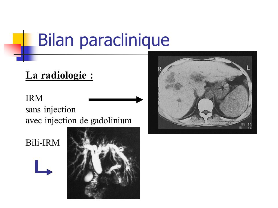 Bilan paraclinique La radiologie : IRM sans injection