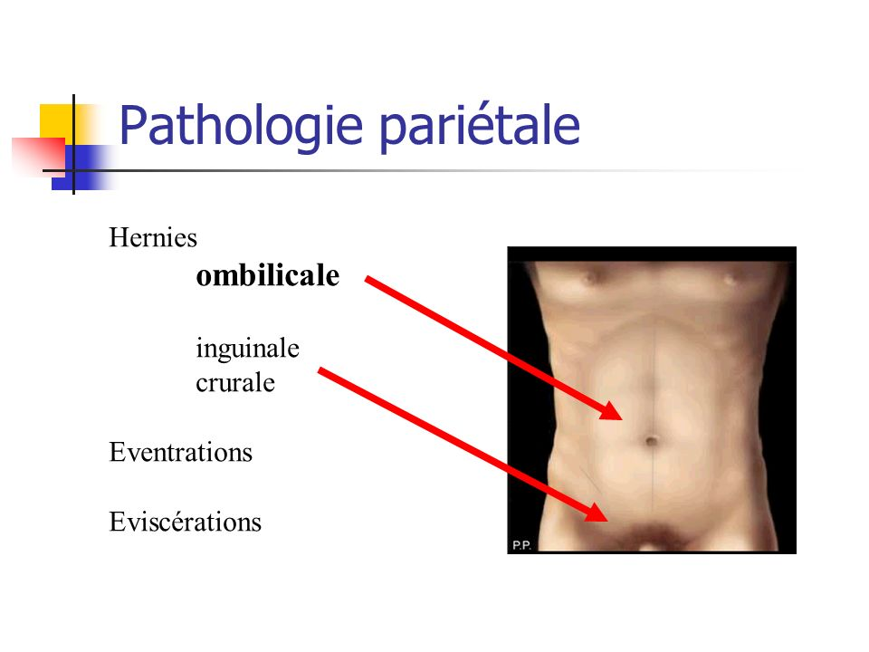 Pathologie pariétale Hernies ombilicale inguinale crurale Eventrations