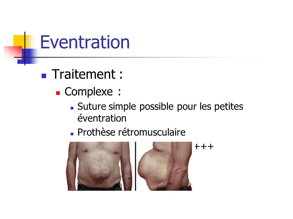 Eventration Traitement : Complexe :