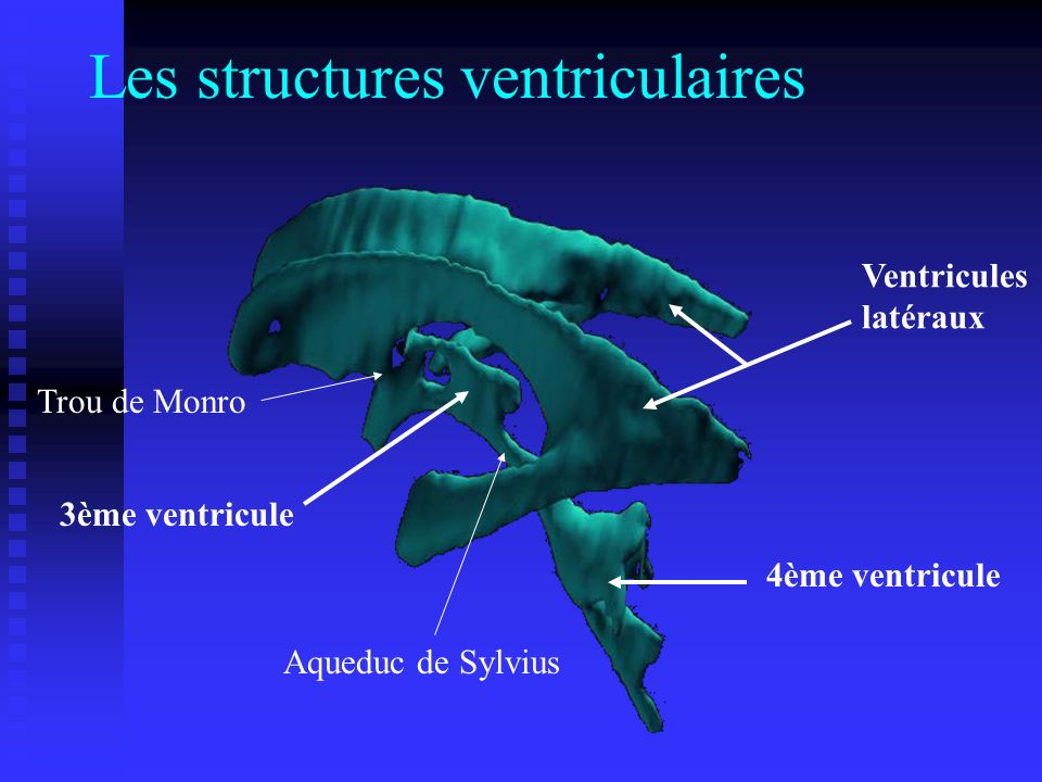 Les structures ventriculaires