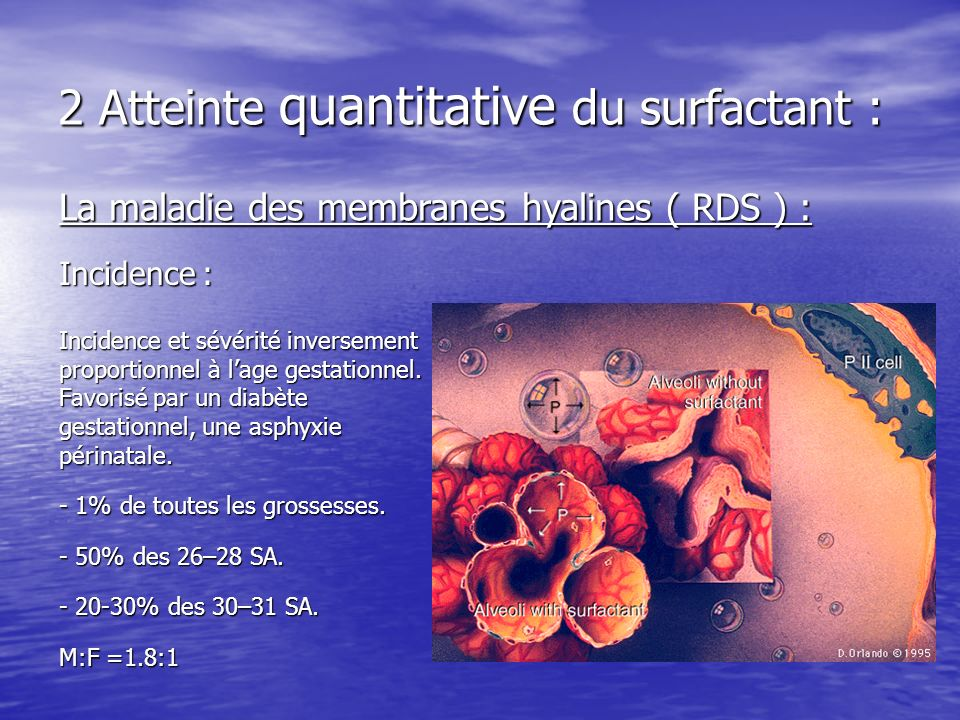 2 Atteinte quantitative du surfactant :