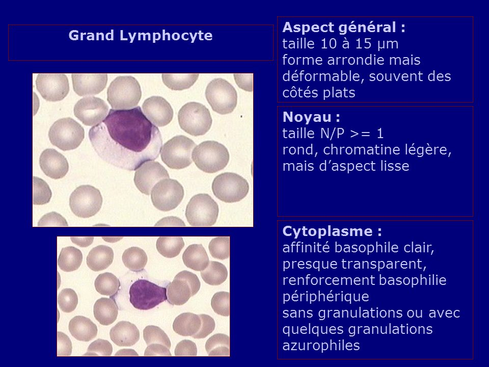 grands lymphocytes hyperbasophiles