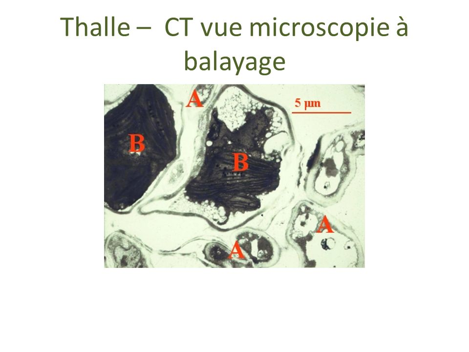 Thalle – CT vue microscopie à balayage