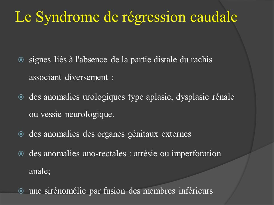 Le Syndrome de régression caudale