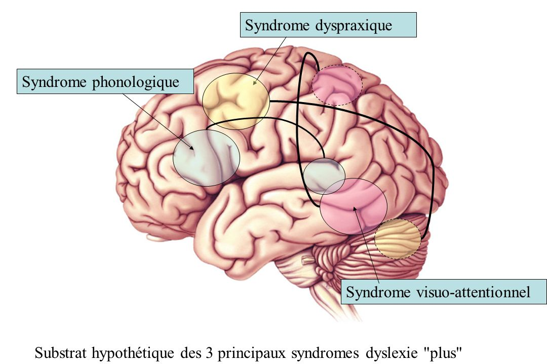 Syndrome dyspraxique Syndrome visuo-attentionnel. Syndrome phonologique.