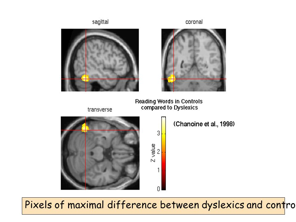 Pixels of maximal difference between dyslexics and controls