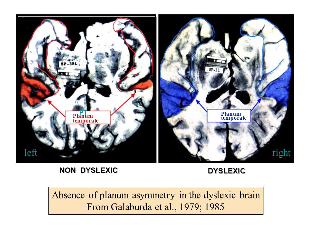 Absence of planum asymmetry in the dyslexic brain
