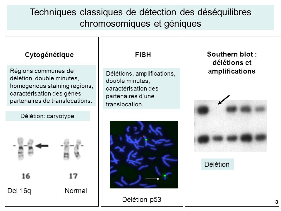 Southern blot : délétions et amplifications