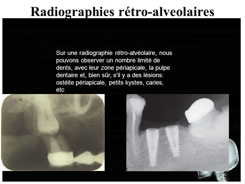 Radiographies rétro-alveolaires