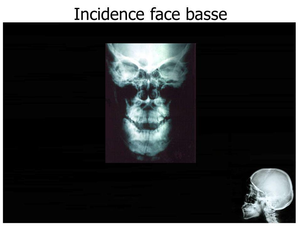 Incidence face basse