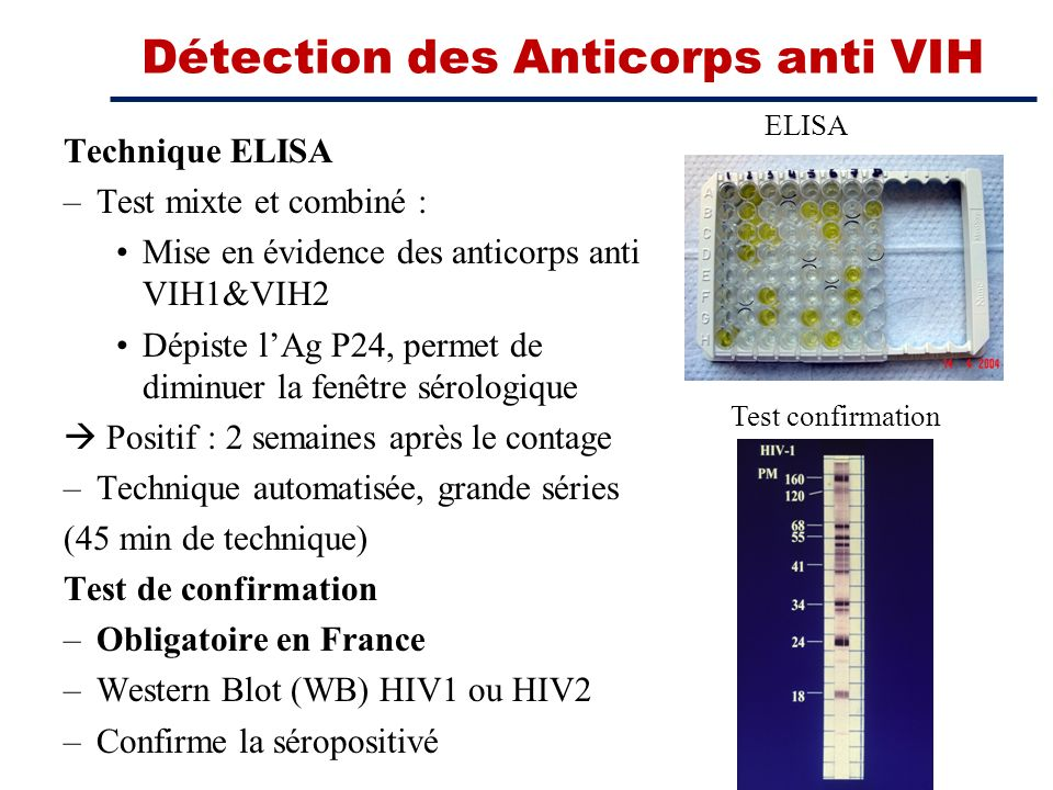 Détection des Anticorps anti VIH