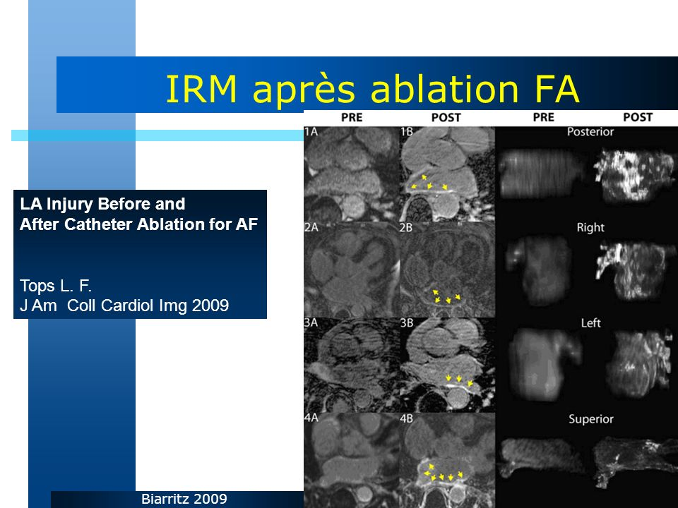 IRM après ablation FA LA Injury Before and