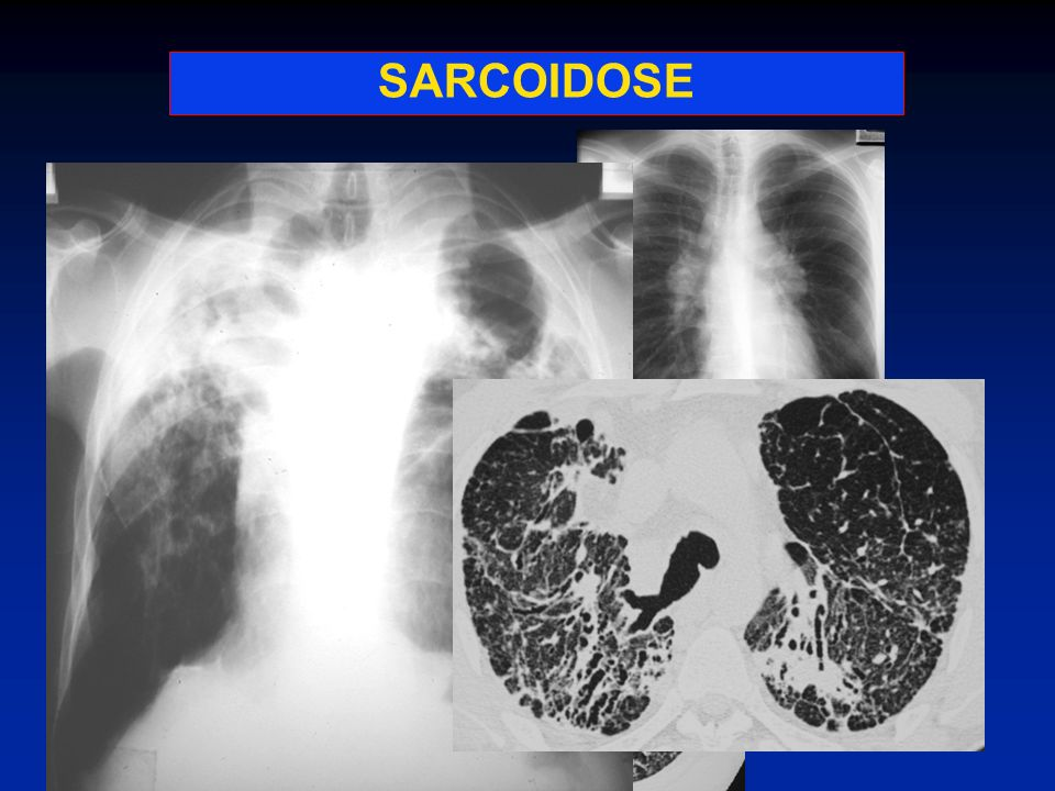 SARCOIDOSE SARCOIDOSE: incidence : âge : sex-ratio :