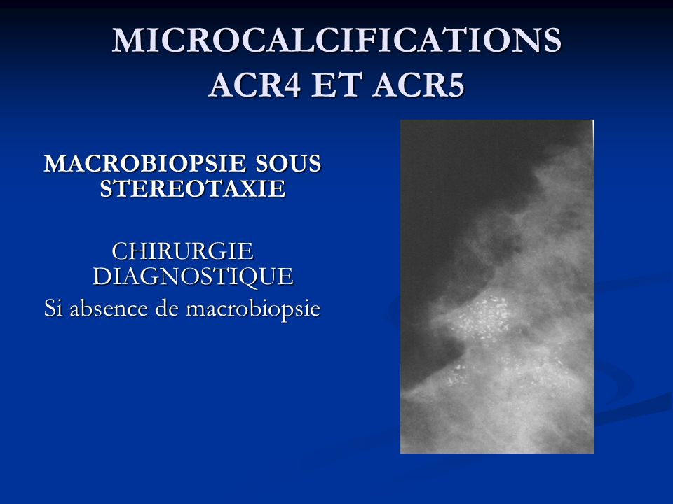 MICROCALCIFICATIONS ACR4 ET ACR5