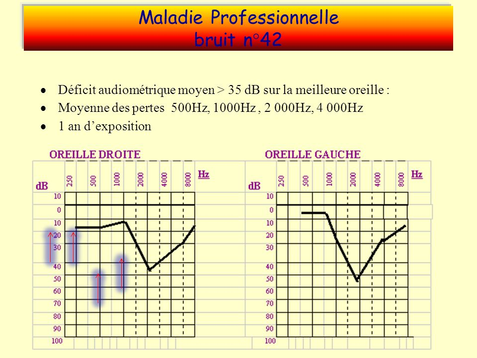 Maladie Professionnelle bruit n°42
