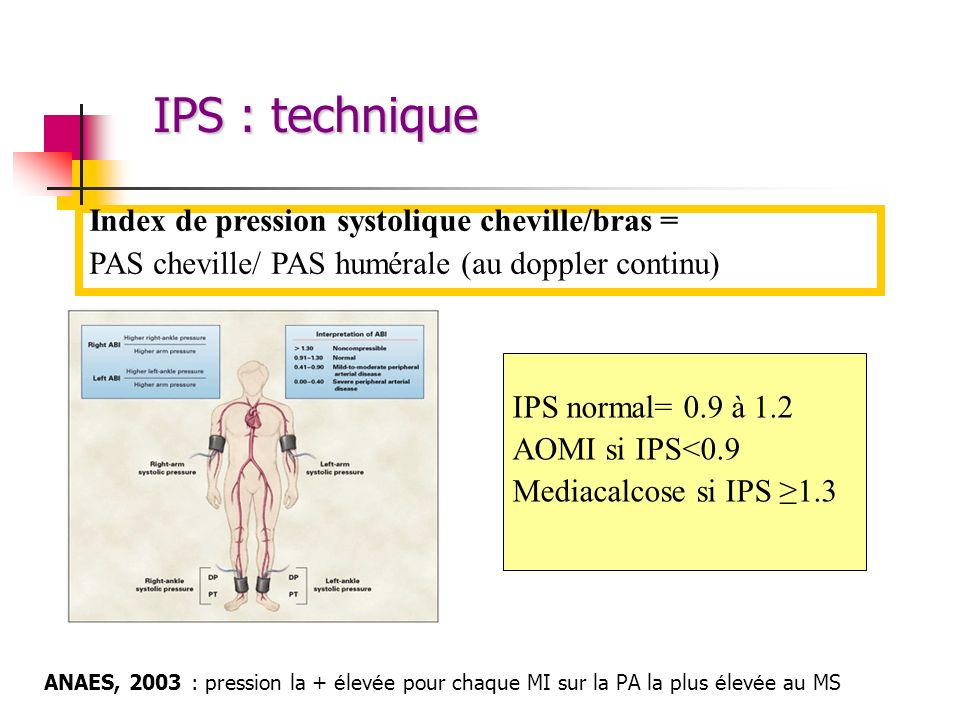IPS : technique Index de pression systolique cheville/bras =