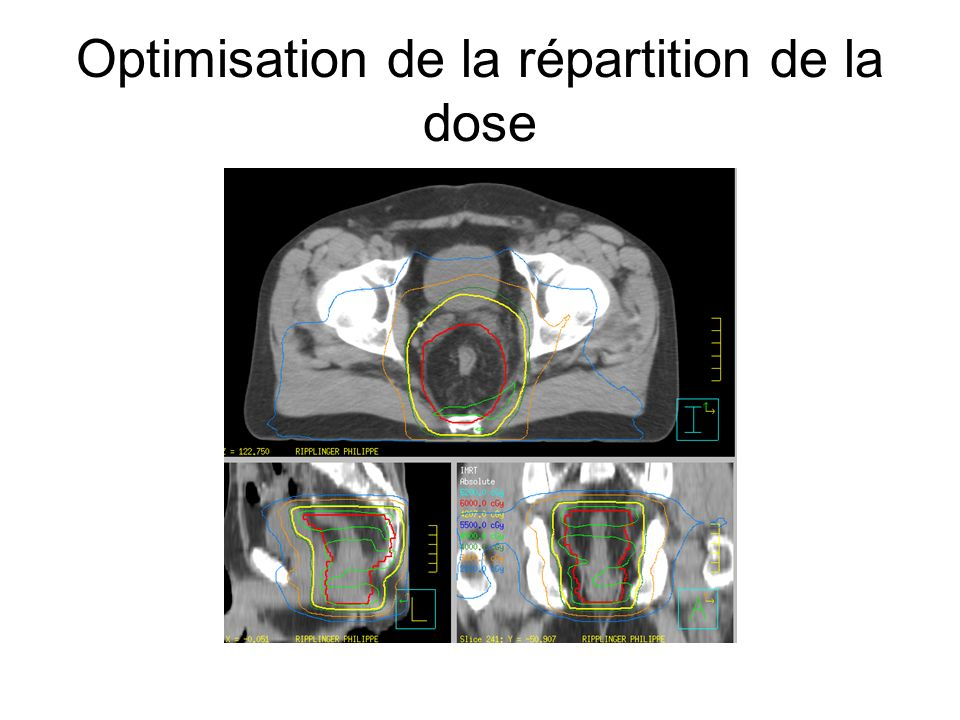 Optimisation de la répartition de la dose